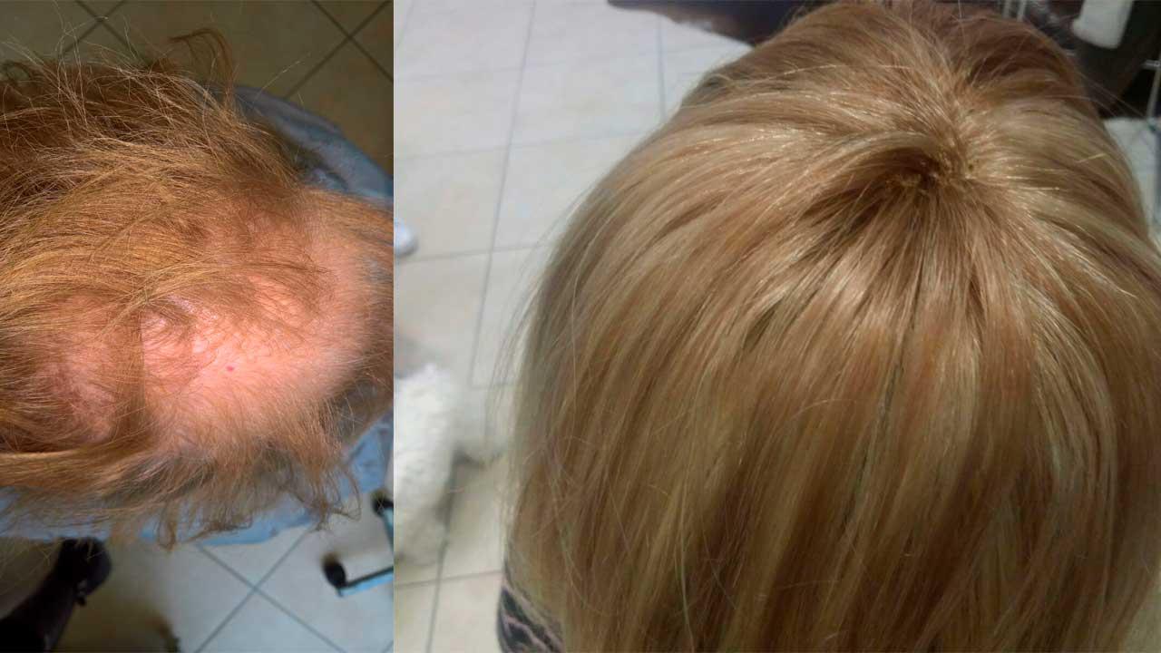 Maschere per capelli con miele e pepe nero